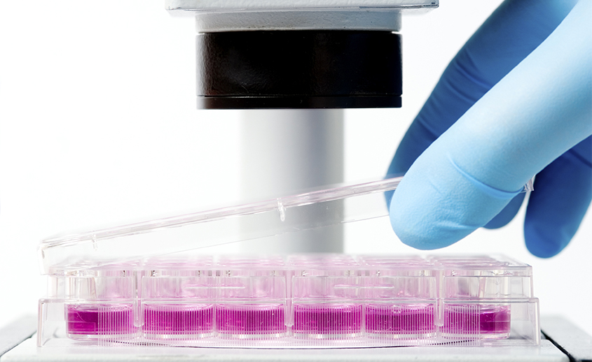 Prueba en laboratorio de una citologia